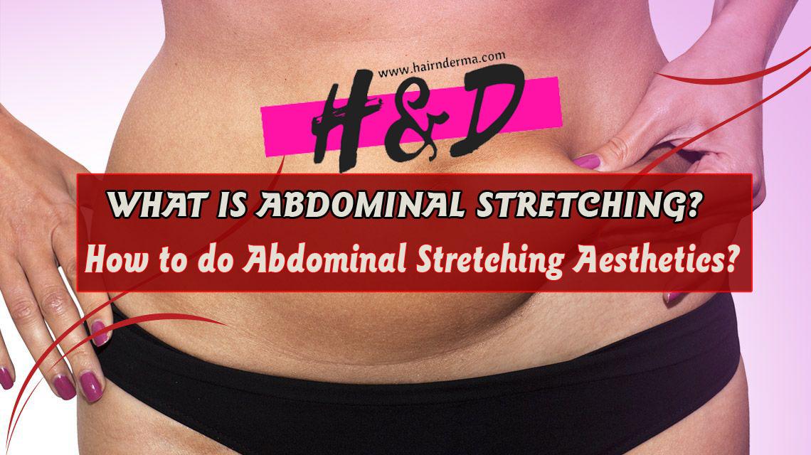 abdominal streching surgery