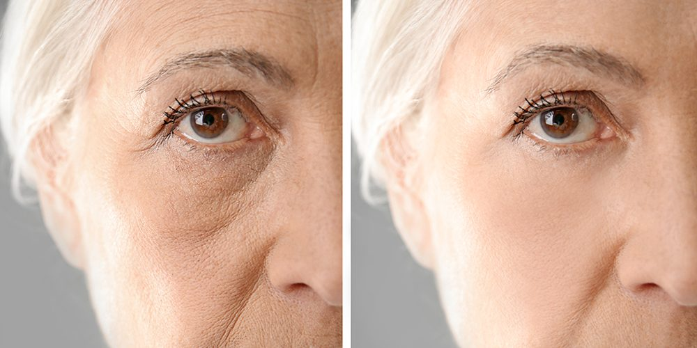 Photo of WHAT IS MIDDLE FACE LIFT SURGERY?