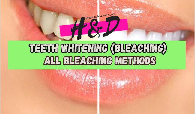 bleaching methods