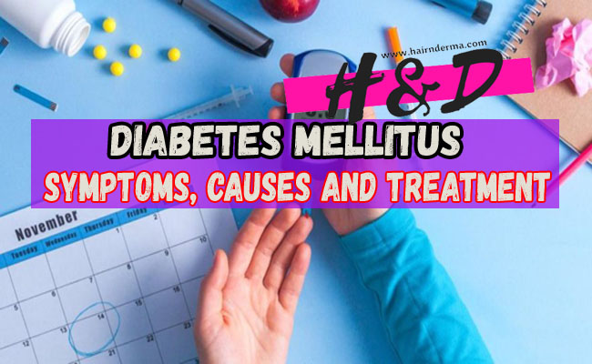Diabetes Symptoms, Causes And Treatment Methods