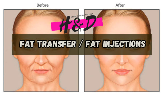 Photo of What is Fat Transfer?