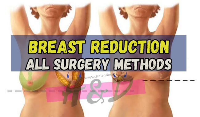 Photo of Breast Reduction