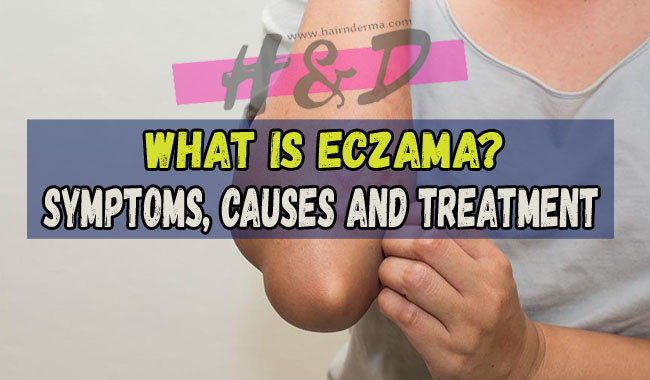 Photo of What is Eczema?