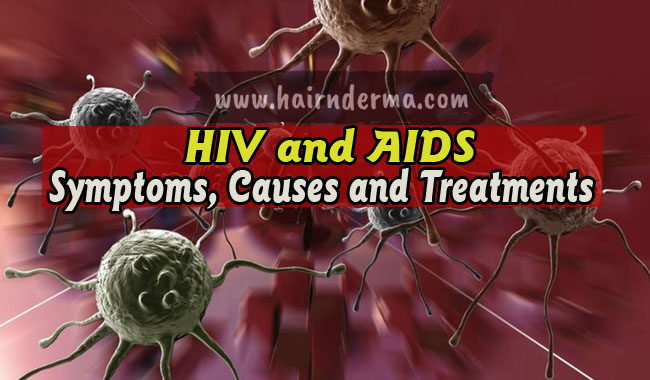 Photo of HIV: Symptoms, Causes and Treatment