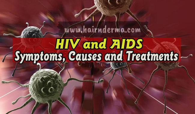 HIV causes