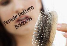 Photo of Female Pattern Baldness