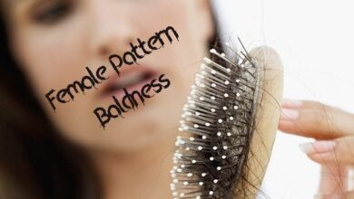 Photo of Female Pattern Baldness